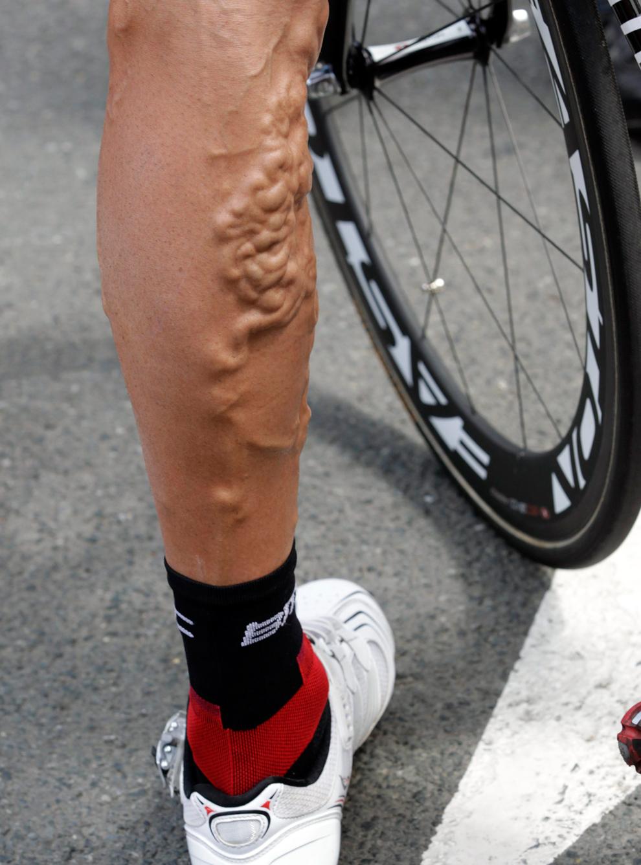 Re: 2011 Tour de France