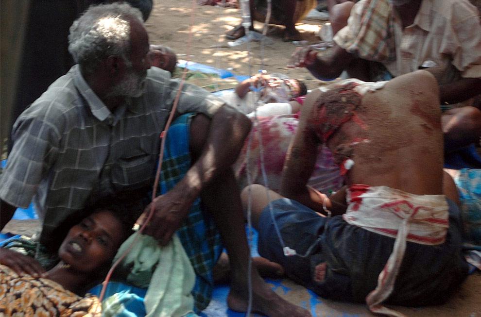 Раненые гражданские, лежат на земле в импровизированном госпитале. Это фото 20 апреля 2009 обнародовала Миссия милосердия Ванна, группа поддерживающая сепаратистов. (REUTERS/Mercy Mission to Vanni)