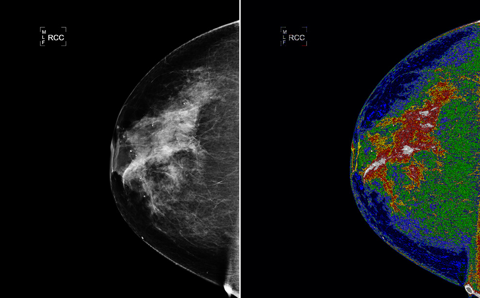 oncology boston breast